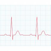 picture of electrocardiogram  - Medical electrocardiogram  - JPG