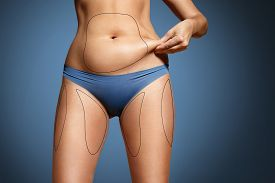 foto of body shapes  - woman pinched her fat on body - JPG