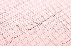 picture of ekg  - Electrocardiogram graph ekg heart rhythm medicine concept - JPG