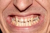 Mouth Of Man With Crooked Yellow Overlap, Crowding Teeth Close-up, Decayed Tooth. Not Correct, Broke poster