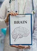 stock photo of neurology  - Neurologist doctor holds clipboard with brain drawing to explain neurology - JPG