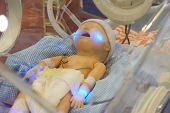 Infant Dummy In Neonatal Intensive-care Unit For Medical Students Study poster