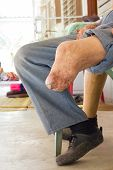 Left Leg Without Foot Of Old Man Sitting On Chair