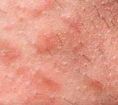 stock photo of itchy  - Macro of Eczema atopic dermatitis symptom skin texture - JPG