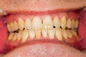 foto of denture  - Healthy entire natural denture of a patient - JPG