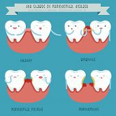 pic of gingivitis  - The stages of periodontal disease dental vector - JPG