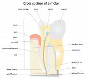Cross section of a tooth (molar). Instructions are removable