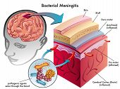 stock photo of mater  - medical illustration of symptoms of bacterial meningitis - JPG
