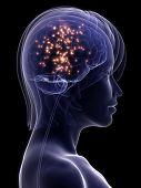 active brain