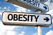 picture of obesity  - Obesity direction sign on sky background - JPG