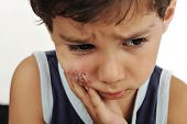 stock photo of scabs  - sick kid with scab on his cheek - JPG