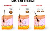 Shape of the hair and hair anatomy