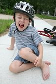 stock photo of scabs  - Boy hurt after falling off his bicycle - JPG