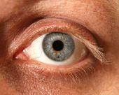Close up of Eye with Birthmark