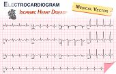 image of ecg chart  - Electrocardiogram  - JPG