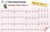pic of beating-heart  - Electrocardiogram  - JPG