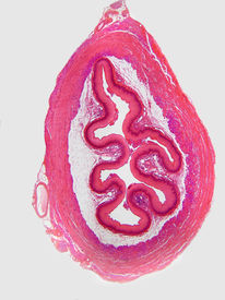 image of mucosa  - A cross section of the esophagus from the lumen through both muscle layers - JPG