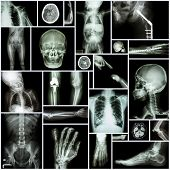 image of orthopedic surgery  - Collection X - JPG