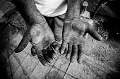 image of callus  - Worker is showing his chapped hands dirty and injured palms - JPG