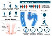 Постер, плакат: Varicose Veins infographics