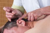 stock photo of pointed ears  - Woman acupuncturist prepares to tap needle into ears of man - JPG