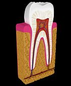 Anatomy: Tooth Cut Or Section Isolated