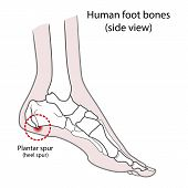 Plantar Spur (calcaneal Spur). Human Foot Bones. Vector Illustration Isolated On A White Background poster