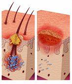 Boils pathogenic bacteria