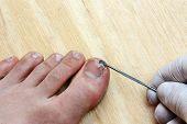 Plucking Nail