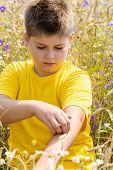 Boy with an allergy