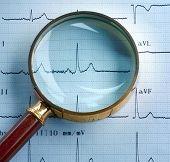 Lupa en cardiograma