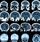 picture of mri  - MRI scan of the human brain - medical concepts