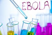 picture of hemorrhage  - Laboratory examination of Ebola with bloody text sign - JPG