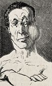 Antique humorous illustration of a man's swollen face after boxing.  Original, by Benassis et Darjou