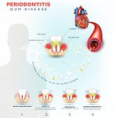 Complications Of Gum Disease Periodontitis.  Bacteria From Inflamed Gums Can Enter In To The Blood S poster