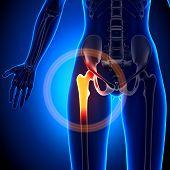 Female Hip Joint - Anatomy Bones