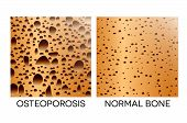 Osteoporosis, Unhealthy Bone