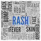 Close up Blue RASH Text at the Center of Word Tag Cloud on White Background.