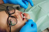 Teeth Whitening At Dentist. Young Woman Showing Teeth. White Teeth. Dentist Picks Up Shade Of Enamel poster