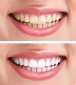 whitening - bleaching treatment ,before and after ,woman teeth and smile, close up, isolated on whit
