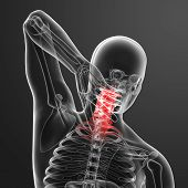 stock photo of roentgen  - 3d rendered illustration pain neck  - JPG