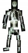 Skeleton Of Human And Multiple Fracture