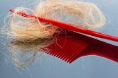 picture of alopecia  - a hair brush with haeren - JPG