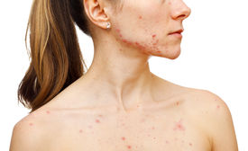 picture of papule  - Portrait of woman showing her pimples on isolated white background - JPG