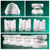 Compilation picture of dental study models