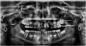 picture of bad teeth  - A radiograph of the teeth with bad teeth who need orthodontic - JPG