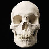 Human skull with teeth on black.