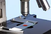 Photo of a laboratory microscope with a blood sample on a glass slide.