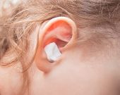 Close Up Ear Of Little Girl. Ear Pain And Cotton Wool In A Ear. poster