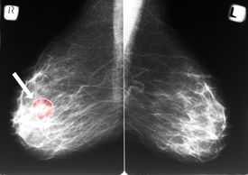 picture of mammography  - Mammogram with arrow indicating a breast cancer in the right breast - JPG